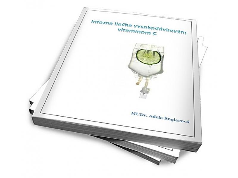 Konzultácia ohľadom podpornej liečby infúznym vitamínom C